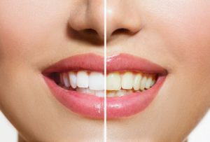 Biloxi MS Dentist | Stained Teeth